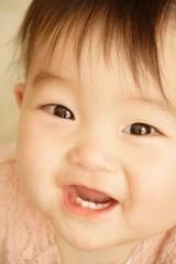 白い 虫歯1